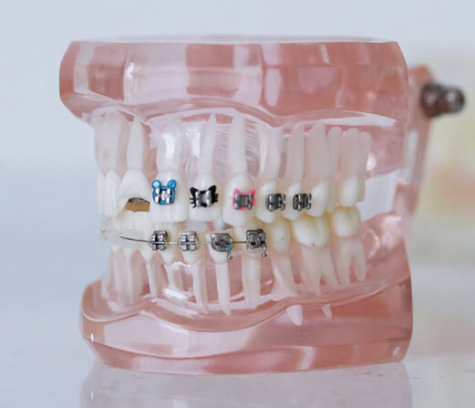 Tips for Caring Metal Braces